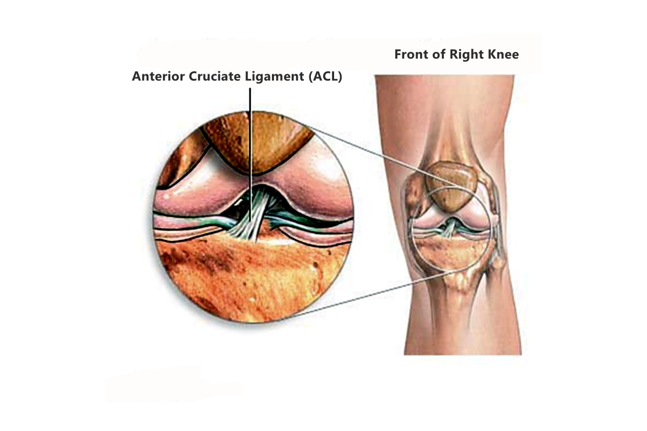 ligament knee surgery - HD 1280×853
